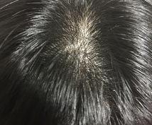 男性の髪に関する悩みの相談に乗ります 髪の毛に関する全般で悩んでいる方向け