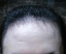 薄毛の悩み少しでも改善できるよう相談のります 薄毛に悩んでうつむき加減になっているあなたへ