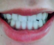 本格ホームホワイトニング激安で出来る方法教えます 歯科クリニック同様ホワイトニングを自宅で簡単に!劇的に白く!
