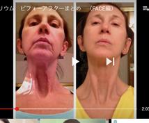 お肌に悩みがある方全て解決します 肌荒れやシワ、シミ、ニキビ跡など改善したい方へ