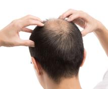 育毛・発毛・抜け毛の原因・一般論をお伝えします これであなたも髪の悩み無し!〜髪の毛の一般論を知ろう〜