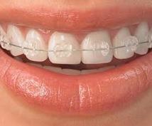 今から矯正をしたいと考えてる方!歯並びで悩んでいる方!歯列矯正のこと教えます!