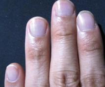 掌紋医学の手相診断で身体の弱い所をお伝えします 中国より伝わる医学的手相診断により将来的疾患リスクをチェック