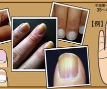 健康状態チェック!掌紋医学の手相診断でお伝えします 中国より伝わる医学的手相診断により将来的疾患リスクをチェック