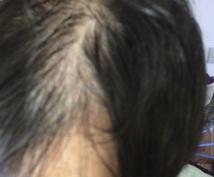 発毛!育毛!薄毛と戦います 薄毛治療でお悩みお困りのあなたへ