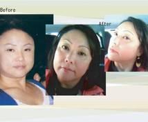 アトピーだった美容師が敏感肌でもキレイな肌とリフトアップ(小顔)を手に入れる方法教えます!!