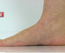 自宅、職場でできる!扁平足改善エクササイズ教えます 〜扁平足にお悩みの方!扁平足が足の痛みの原因になるかも…〜