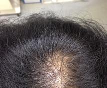 頭髪の抜け毛改善