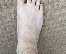 お身体診断! 義肢装具士と足病医式 足診断をします 腰、膝の痛み!足から分かる原因や今後起こりうる事もお伝え!