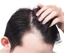 薄毛の悩み、未然に防ぐための解決策をお教えします 薄毛は自信を無くし、常に周りを気にしてしまいます