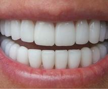 歯をお金をかけずにキレイにする方法を教えます。