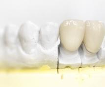 歯の詰め物や入れ歯を入れる前にご相談乗ります 保険〜高級な詰め物、入歯まで先生の説明に納得されてますか?