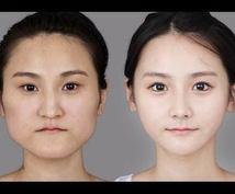 現役美容カウンセラーが美容外科の裏側教えます 本当に効果がある施術!ダウンタイムや金額のお悩み解消します!