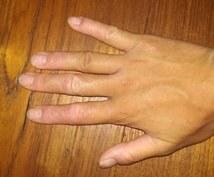手湿疹を治した方法教えます 妊娠を機に3年、手湿疹に悩まされました。克服した方法伝えます