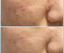 2日で効果!肌トラブル用化粧水の作り方教えます ニキビやゴワゴワが気になる方向けの応急処置に。