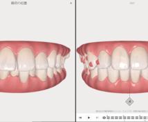 歯科医師がお金をかけずに歯を矯正する方法を教えます お住まいの地域から安く矯正出来るクリニックを選びます