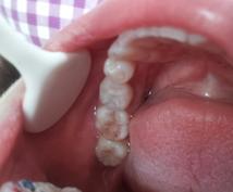 臨床経験24年GP(一般歯科医)がコメントします 『通常の診察やセカンドオピニオンでは表面化しない価値観』