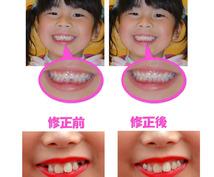 子供の歯のない写真を修整します。
