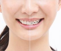 マウスピース矯正・インビザラインの実体験を話します 大人になって歯の矯正を迷っているあなたへ