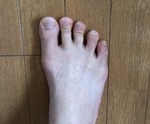 足の悩みが楽になります 。立ち姿勢の工夫や簡単なエクササイズで快適な生活に❗️