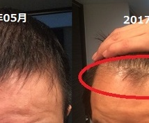 Amazon書籍で販売中の薄毛解消ノウハウあります 皮膚科と医薬品やサプリの輸入経験に基づく髪の毛の砂漠化改善法
