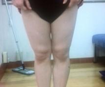 脚の形に自信がない方!改善方法をご案内します o脚やx脚でお悩みの方改善メソッドをご案内